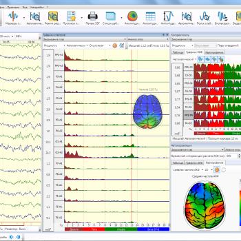 Нейрон-Спектр-5